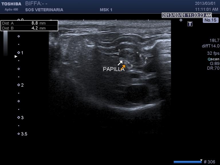 scansione sagittale paipilla