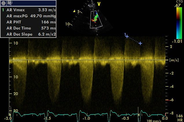 doppler aorta